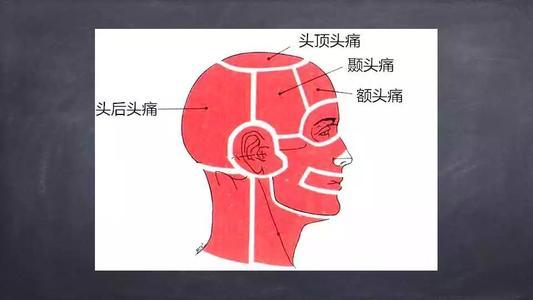 越来越常见的颈源性头痛怎么办—神奇的三氧疗法