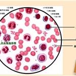 三氧自血疗法对白细胞、血小板的影响