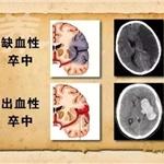 三氧治疗脑中风效果有目共睹