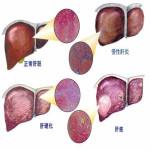 关于臭氧如何治疗肝病