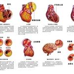 疏通血管 清除杂质 三氧大自血疗法帮你治疗心血管疾病