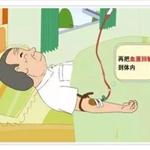 医用臭氧自体血疗法的临床应用及操作指南