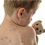 带状疱疹的克星——臭氧治疗