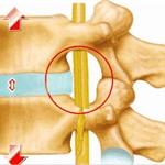 臭氧如何治疗膝关节炎的原理及步骤