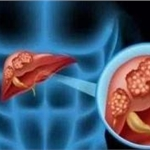 【治疗肝病】三氧打开肝病诊疗新篇章