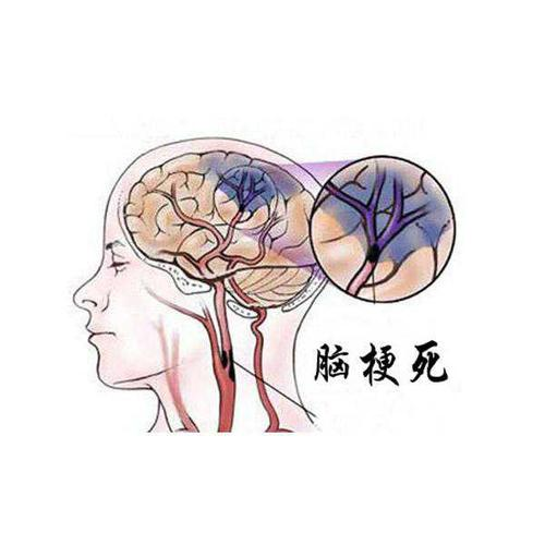 预防脑梗死的新措施——臭氧大自血疗法