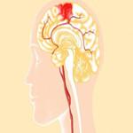 脑出血新型辅助治疗手段—三氧免疫自血疗法