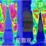 医用红外热成像技术在运动损伤中的应用