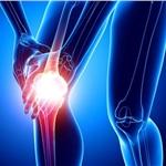 医用臭氧治疗膝关节骨性关节炎