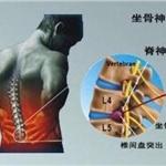 臭氧治疗腰椎间盘突出得注射几次才有效?关键术后做好这3点