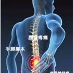 胶原酶治疗腰间盘突出的优点有哪些
