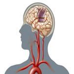 三氧疗法:控制动脉粥样硬化的有效干预措施