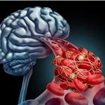 臭氧治疗仪治疗脑血管疾病的原理